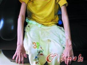 广州女孩跳楼觅食续:检察院称被饿不构成虐待