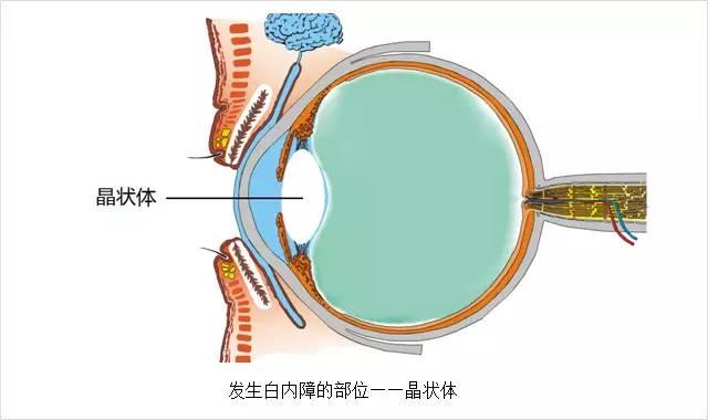 爱尔眼科专家带你认识白内障的五大误区