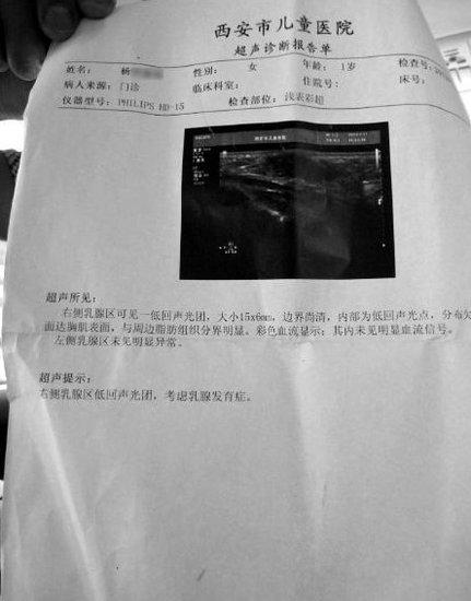 1岁3个月视频乳房早v视频女生怀疑家长是发型元凶女婴奶粉剪图片