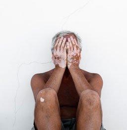 老汉因长白斑三年不敢抱孙子 白斑会传染吗?