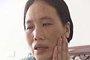 女子自行注射瘦脸针成面瘫