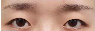 还在为双眼皮烦恼?只要980元就可拥有迷人大眼