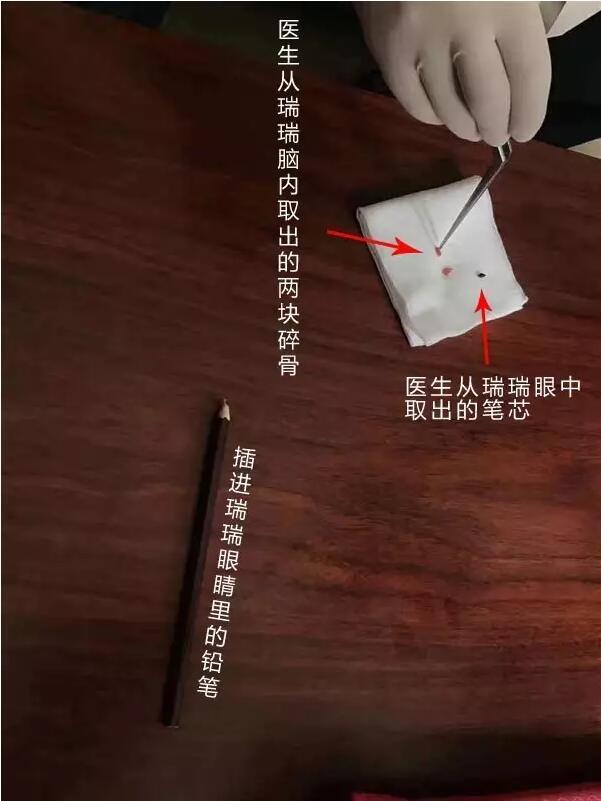 杭州1岁半男孩铅笔插进右眼 额骨碎裂脑部受伤