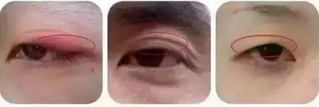 还在羡慕别人的双眼皮?报名享980元美眼福利