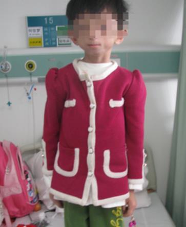 温州11岁女孩患罕见怪病 皮肤松弛颜如80岁老妪