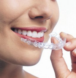 整牙=整容?牙齿矫正真的能改变脸型吗?