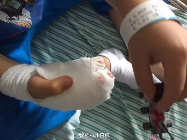 6岁男孩在机场玩耍时手被割 肉都掀起来了