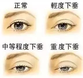你的眼型适合割双眼皮吗?980元就能有一双灵韵美眼