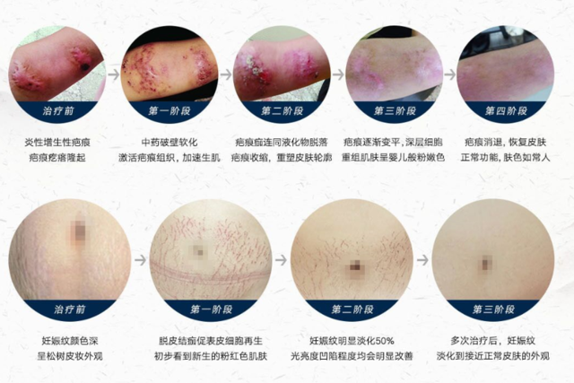 杭州非手术祛疤痕祛妊娠纹签约治疗活动报名开始了