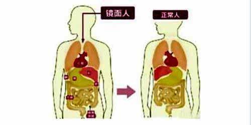 张先生的肝脏在左侧,脾脏在右侧,与正常人相反.-温州男子五脏六图片