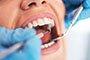 长智齿疼痛难忍 试试这3个方法缓解