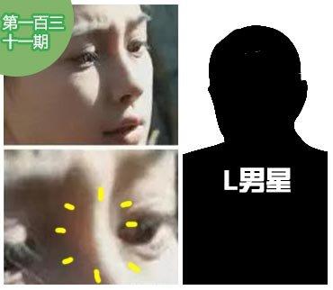 2015-03-26期:Baby鼻梁透光被疑整形 L男星喜赴日玩女演员