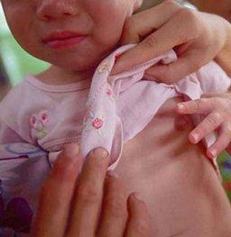 6岁女童早发育 皆因奶奶的一个举动