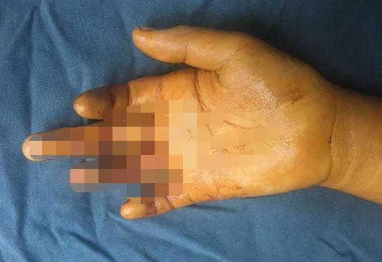 10岁女孩切西瓜刀掉下来伸手去接 右手血肉模糊