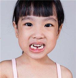 牙齿缺失,是选择种植牙、烤瓷牙还是戴活动假牙呢?