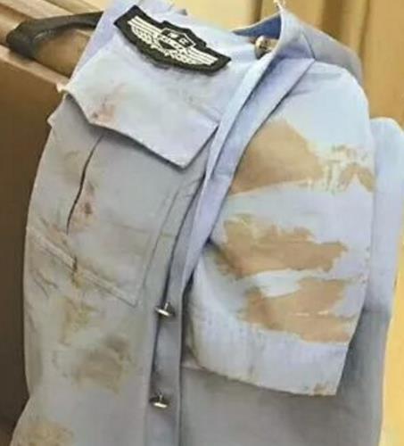 衢州一民警追击暴徒遭殴打 染血的警服感动网友