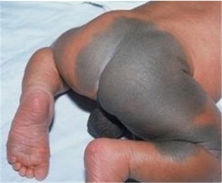 胎记、疤痕全程免费治疗 限定名额立即抢!