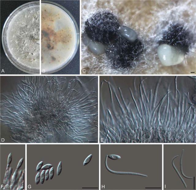 宁波口岸截获6种植物病原真菌新物种 为全国首次