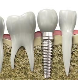 为什么种植一颗牙能花掉两万?