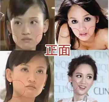 陈乔恩是不是整容了_陈乔恩十年整容路_时尚_腾讯网