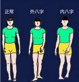 正確的走路姿勢 正確走路腳姿勢受力圖 論食用狗糧的正確姿勢圖片
