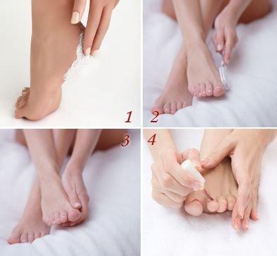 脚光_光脚穿凉鞋容易长脚茧 温水泡脚可温和去除硬茧