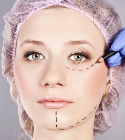 """整形专家:眼角手术不可过度""""开发"""""""