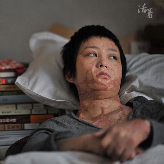 周岩毁容_毁容少女周岩母亲:已收到陶家180万赔偿款_新闻_腾讯网
