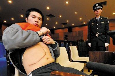 中国人体器官交易黑市猖獗 供体被当牲口豢养